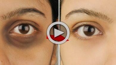 Photo of Skin Care Beauti Tips: শিখে নিন মাত্র ৫ মিনিটে চোখের নিচের কালো দাগ দূর করার সহজ উপায়, রইল ভিডিও